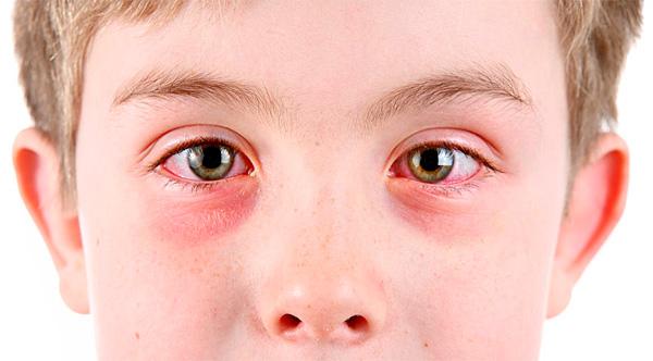 К типичным признакам поллиноза относятся воспаленные глаза, мешки под ними, складки на носу (аллергический салют) и постоянно текущие из носа сопли.