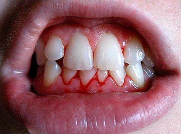 При любых проблемах со свертываемостью крови применения ромашки следует избегать.