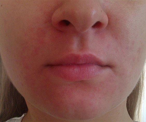 При аллергии приём ромашки внутрь может вызвать сыпь на всем теле, а при местном применении - именно на обработанных участках.