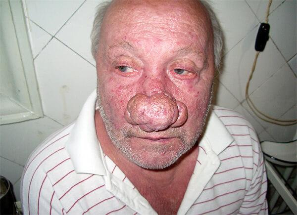 В таких случаях Мореназал не окажет даже симптоматического эффекта.