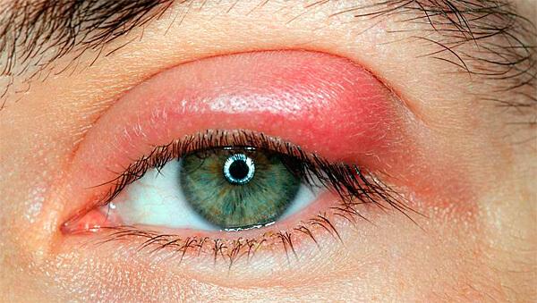 Для лечения ячменя ромашкой промакивают места воспалений.