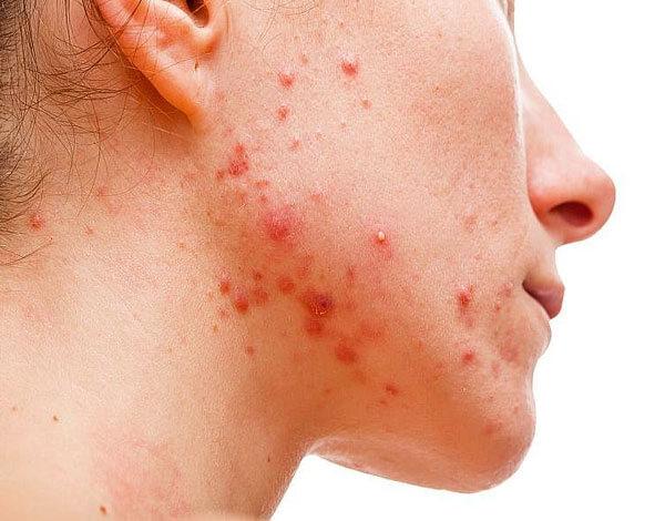 Несмотря на временность действия, приём ромашки при воспалениях кожи хорошо зарекомендовал себя в качестве вспомогательного средства.