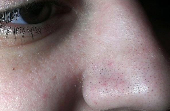 """Ромашка при таких проявлениях снижает частоту воспалений """"черных точек"""" и нормализует общее состояние кожи."""