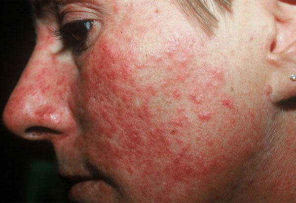 От причины сыпи ромашка не избавить, но выраженный симптоматический эффект окажет.