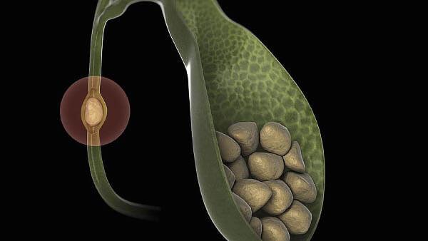 Считается, что ромашковый отвар может стимулировать выброс желчи с частью мелких камней из желчного пузыря, а следовательно, и очистку его.