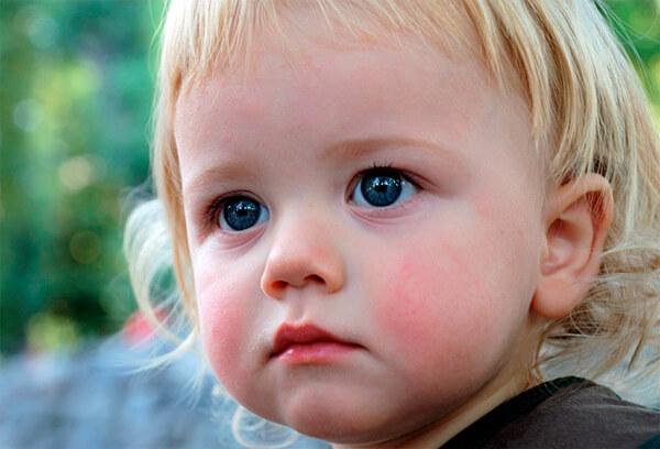 Известны смертельные случаи от аллергии на ромашку у детей, поэтому при таком лечении родителям нужно быть очень осторожными.