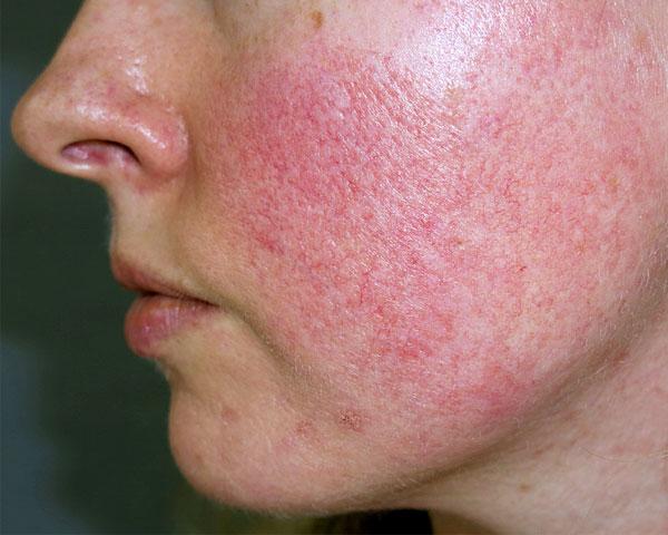 Выраженность таких симптомов при обработке кожи маслом будет значительно меньшей.
