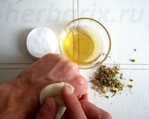 Помимо обработки ран ромашкой смазывают сыпи, воспаления и различные раздражения кожи.