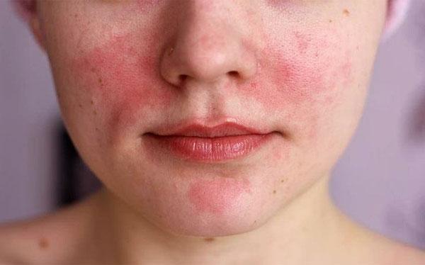 Проявления аллергии при наружном применении обычно менее выражены, чем при употреблении ромашки внутрь.