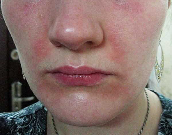 Ромашка может как ослаблять, так и усиливать аллергию, и предсказать, какой будет реакция, заранее нельзя.