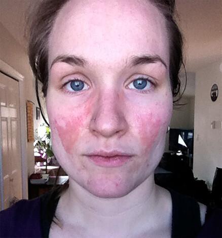 Чаще, чем при наружном применении, аллергия на ромашку проявляется при приёме её внутрь.