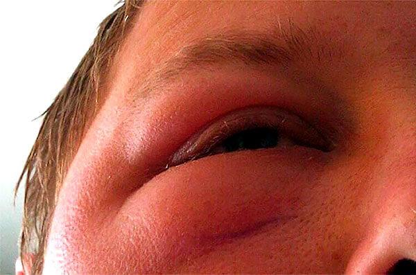 """Как следствие, аллергия иногда не прощает попыток """"рискнуть""""."""