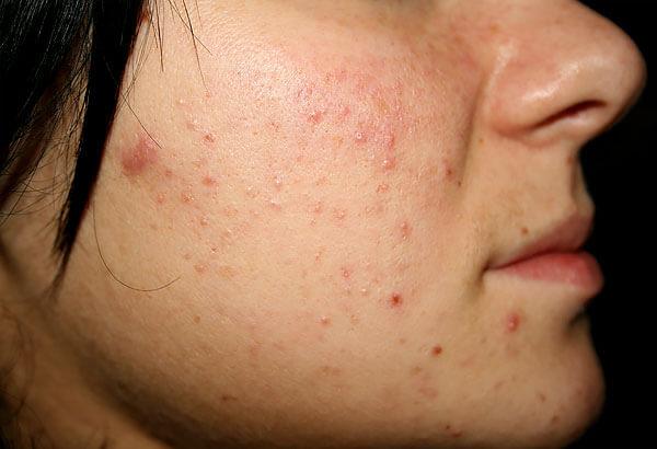 Брусника не считается сильным аллергеном, но непереносимость её не является каким-то исключительным случаем.