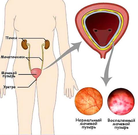 К тому же, из узких мочеточников у мужчин моча удаляется с большим напором, выводя в том числе и бактерий.
