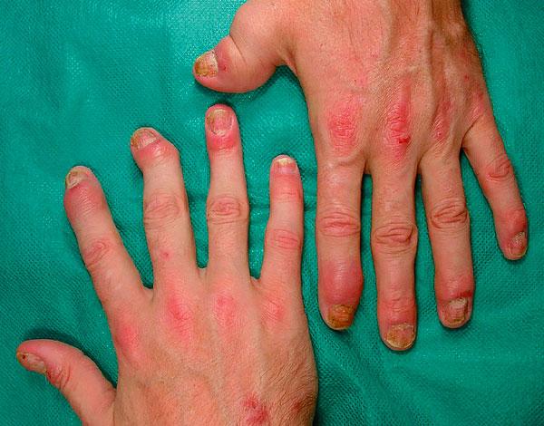 Однозначных подтверждений мнению о пользе брусники при артрите нет.