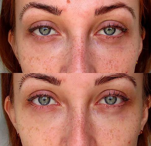 Сверху - лицо до курса применения отвара ромашки, снизу - через неделю процедур.