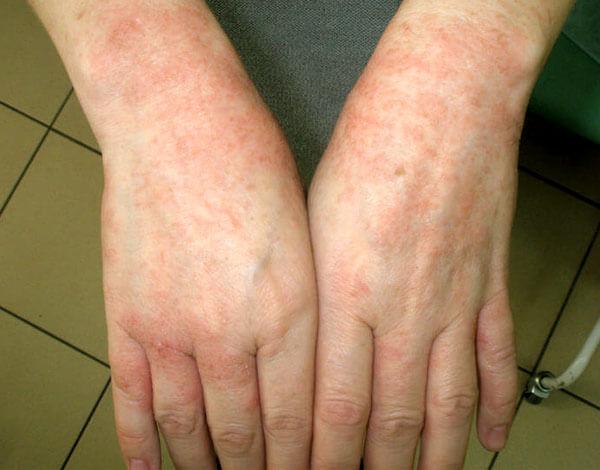 Такие же высыпания могут появляться на лице, на спине, боках тела и на шее.