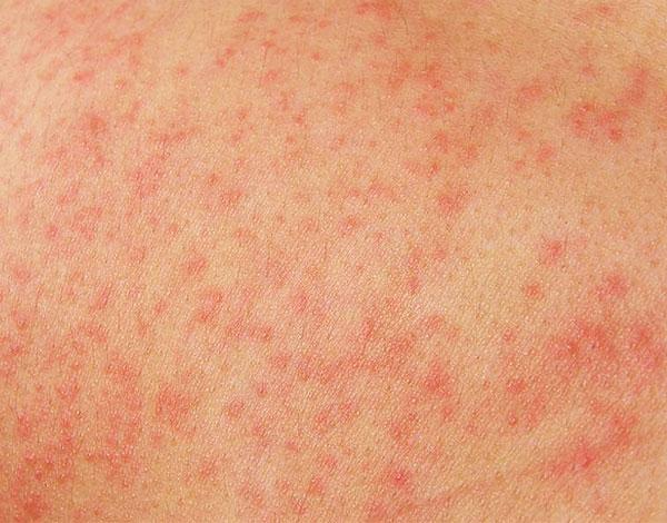 Аллергия может возникнуть на любой компонент смеси настоек.