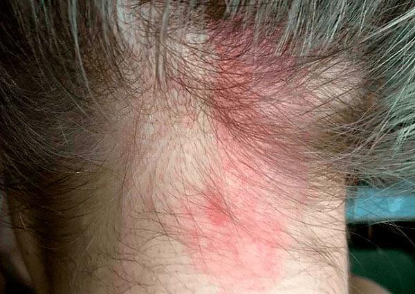 При гиперчувствительности к компонентам алоэ это средство может вызвать тяжелую аллергию.